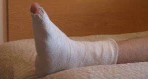 Treatment of Fracture (Broken Bone)