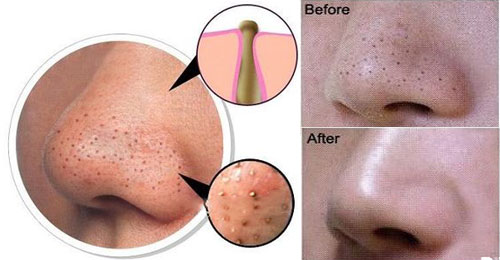 simple remedy to get rid of blackheads - masala tv, Skeleton