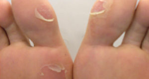 Treatment of Blisters on Feet By Herbalist Shah Nazir