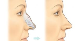Remedy For Bone Growth In Nose – Nasal bone spur