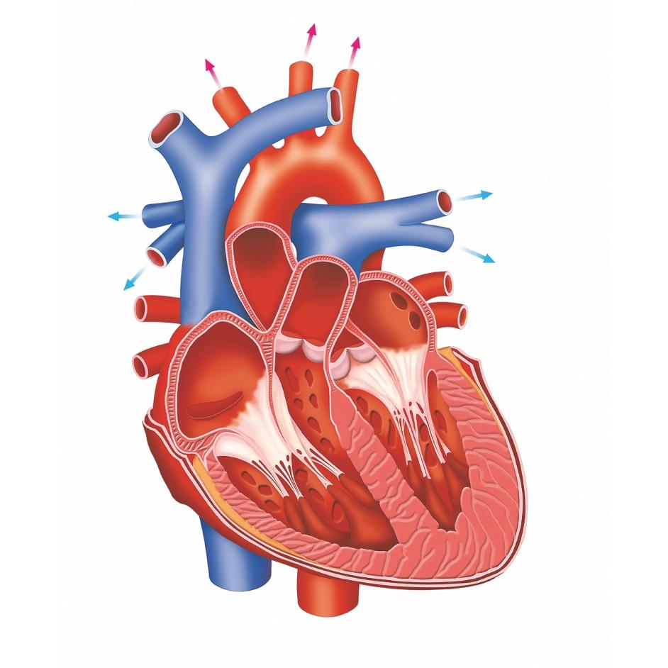 Treatment Of Heart Blockage