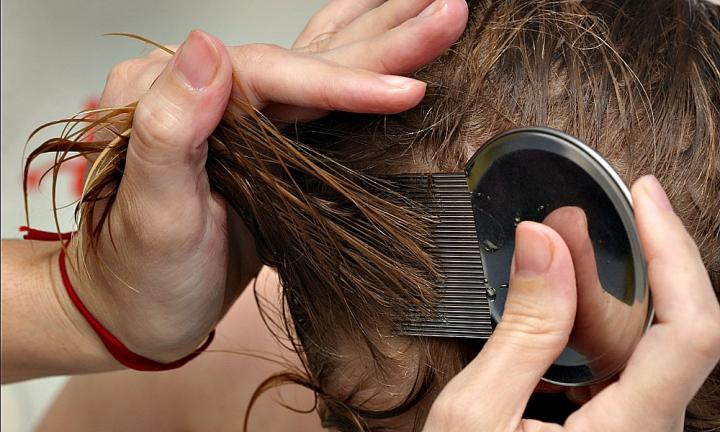 how to get rid of nits fast